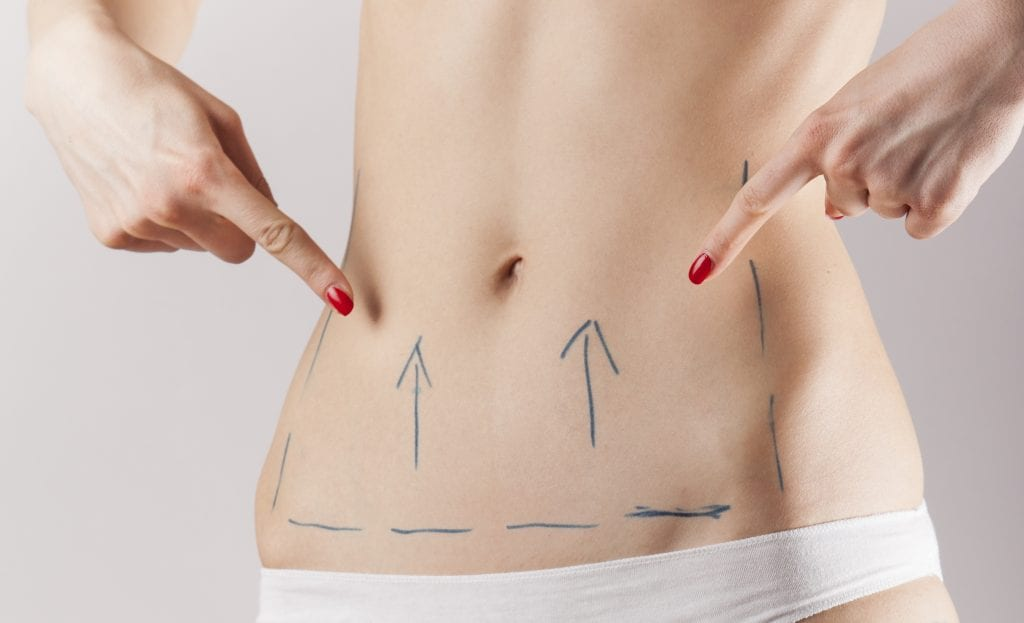 Everything You Need to Know About Mommy Makeover and Tummy Tuck