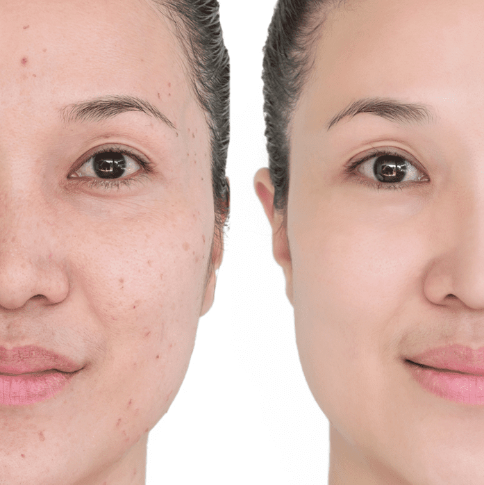 A dermatologist's advice for the best way to get rid of dark