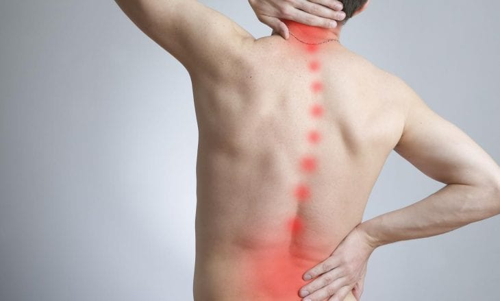 back and neck pain11 730x439 - The benefits of Chiropractic Care