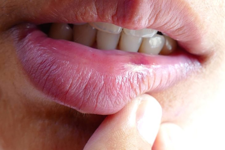 cold sores after oral sex