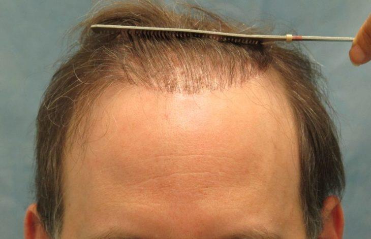The Difference Between Fue And Fut Hair Transplants The Frisky