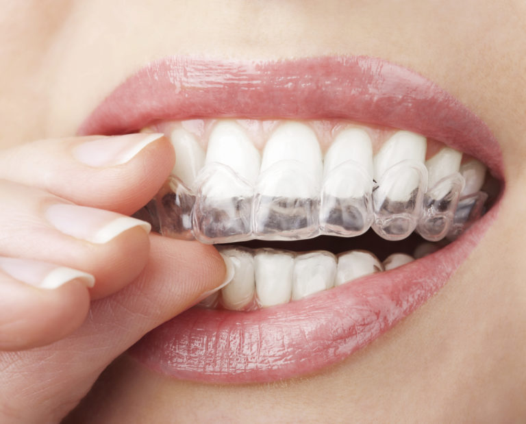 The Most Popular Orthodontic Treatments for Celebrities