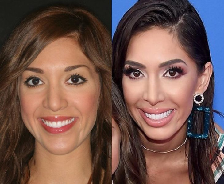 Farrah Abraham Plastic Surgery Before and After - Plastic