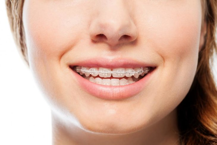 Everything you need to know about wearing braces - The Frisky
