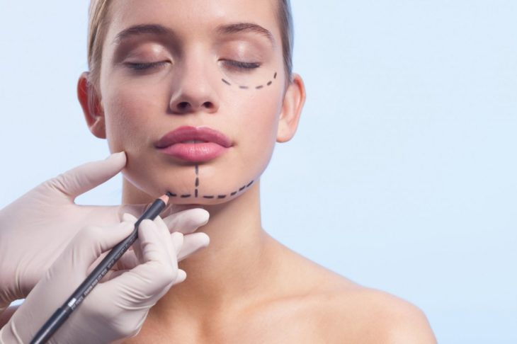 All There is to Know about Facial Feminization Surgery - The