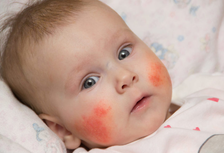 Live a Full Life with These Eczema Management Tips - The ...