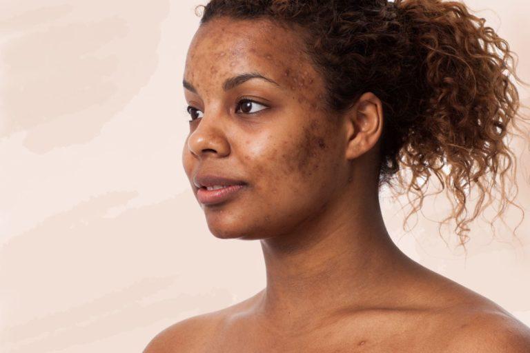 Glowing Skin, a Dream? No More!