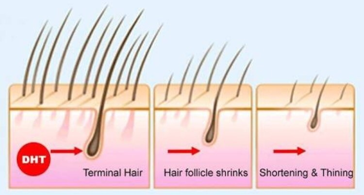hair loss because of DHT