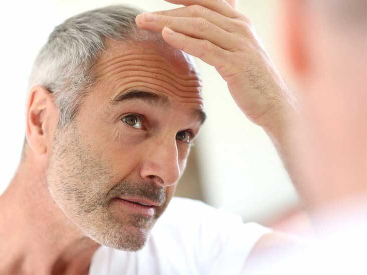 8 Best Hair Loss Treatment for Men in 2021